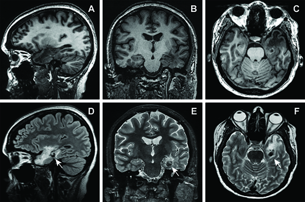MRI-obtained-9.5-years-following-radiosurgery-showing-suspected-radiation-induced-lesion.
