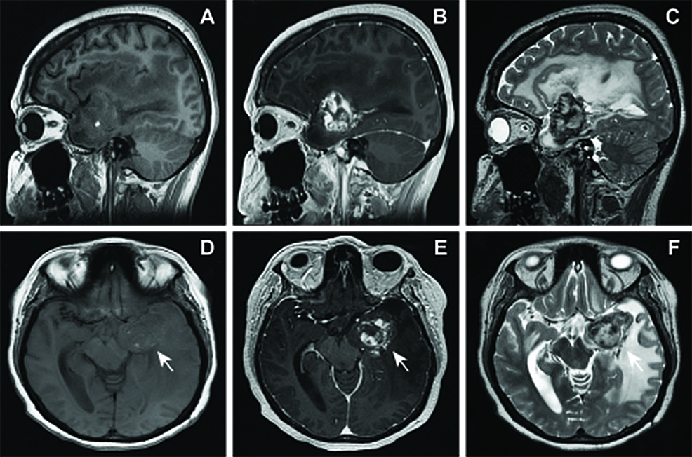Preoperative-MRI-obtained-15.5-years-following-radiosurgery-showing-interval-expansion-and-hemorrhage-of-radiation-induced-lesion.--