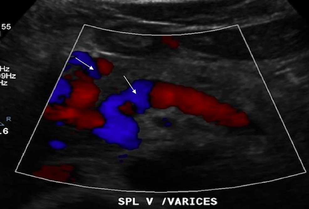 Doppler-ultrasound-of-the-liver-revealing-multiple-venous-collaterals-(white-arrows)-seen-in-the-porta-hepatis,-consistent-with-cavernous-transformation