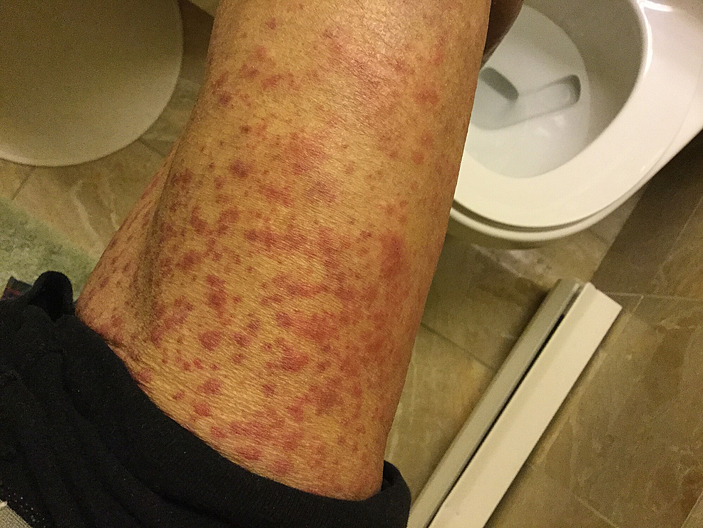 Thigh-four-days-after-influenza-vaccination
