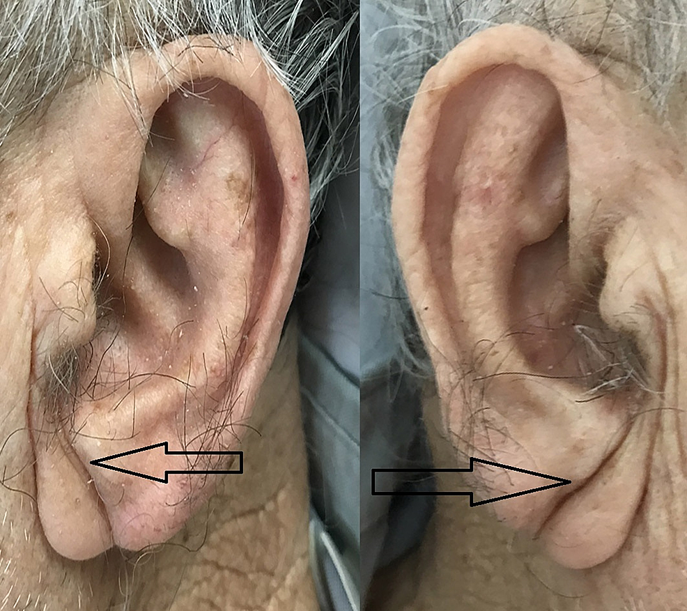 Typical-bilateral-diagonal-earlobe-creases-(the-Frank's-sign)-(arrows)
