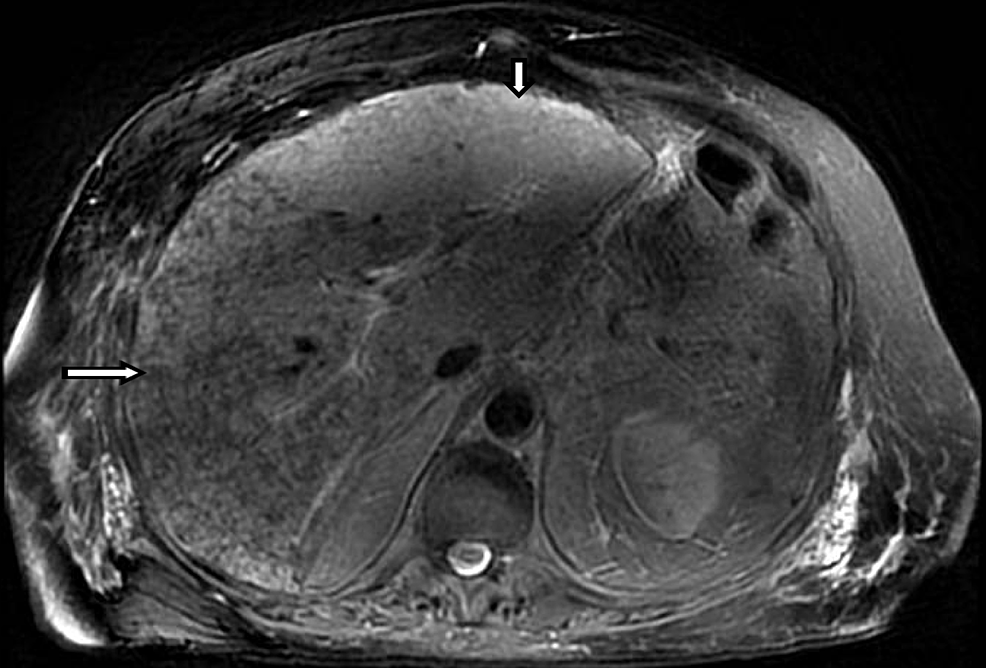 Magnetic-Resonance-Imaging-(MRI)-of-the-Abdomen-without-contrast