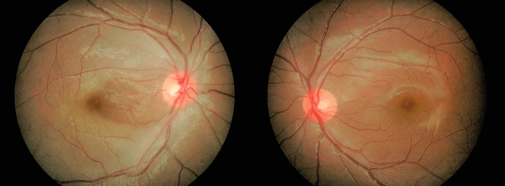 Central-retinal-artery-occlusion-with-patent-cilioretinal-artery-in-the-right-eye,-and-normal-fundus-finding-in-the-fellow-eye