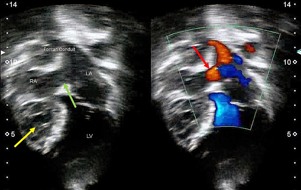 Echocardiogram-showing-a-hypoplastic-right-ventricle-(yellow-arrow)-and-an-atrial-septal-defect-(green-arrow)-with-no-intracardiac-thrombus-formation.-Color-doppler-imaging-demonstrating-blood-flowing-from-the-right-to-the-left-atrium-(red-arrow)