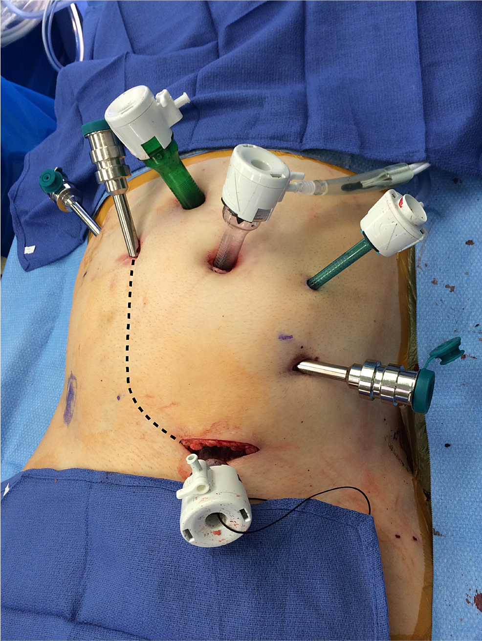 Specimen-extraction-site-at-the-lower-medial-aspect-of-the-patient's-prior-Gibson-scar