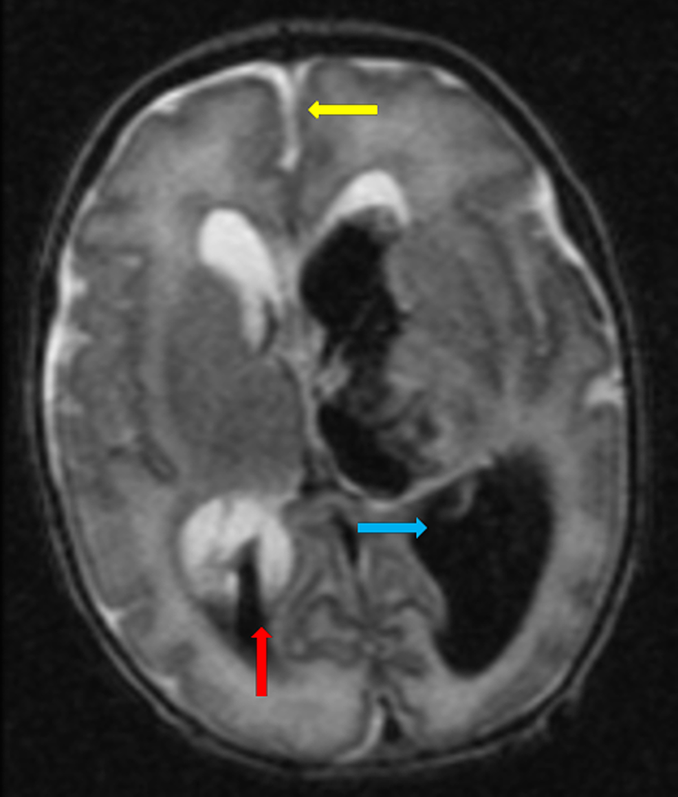 Grade-IV-left-sided-interventricular-haemorrhage-(blue-arrow).-Grade-III-right-sided-intraventricular-haemorrhage-(red-arrow).-Midline-shift-is-noted-(yellow-arrow).-There-is-parenchymal-haemorrhage-extending-into-the-left-frontoparietal-region.