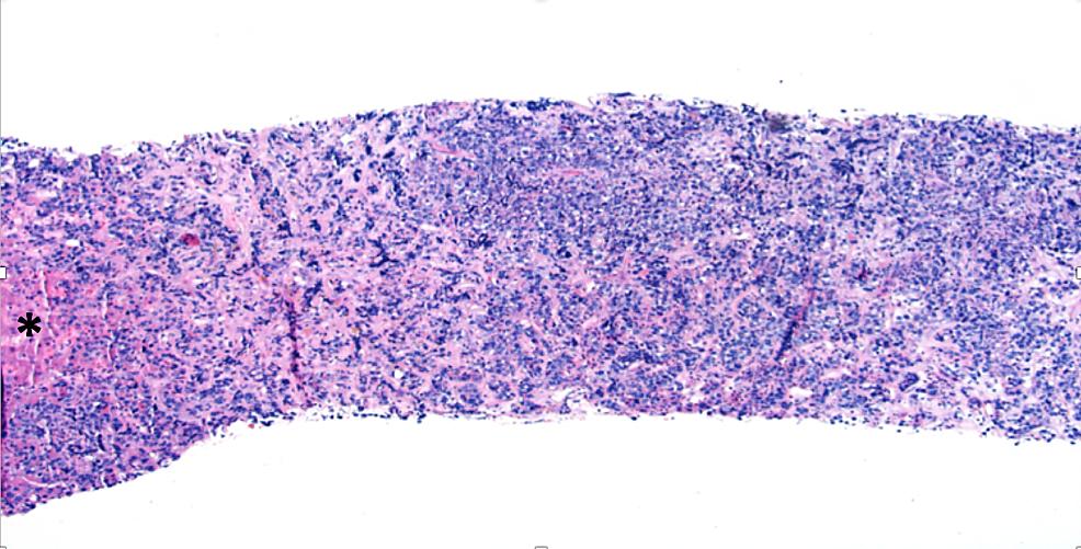 Liver-Core-Biopsy