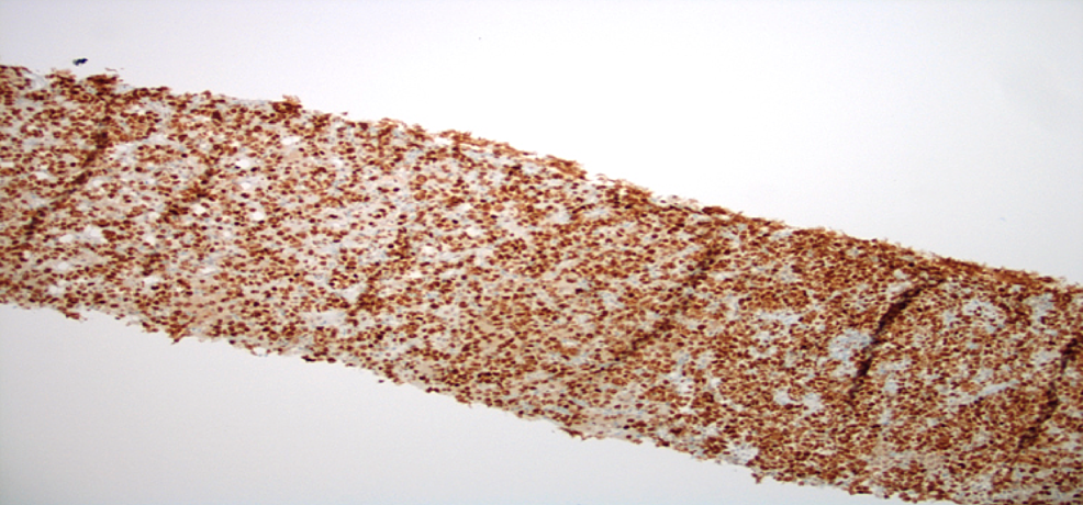 Liver-Core-Biopsy-with-bcl-6-Immunohistochemical-Staining