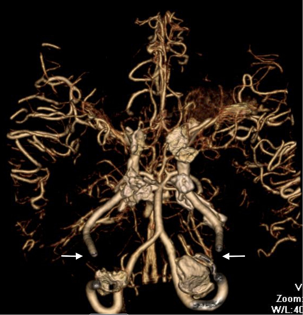 Additional-image-from-the-computerized-tomographic-angiography-(CTA)-of-the-head-and-neck-illustrating-bilateral-occlusion-of-the-internal-carotid-arteries