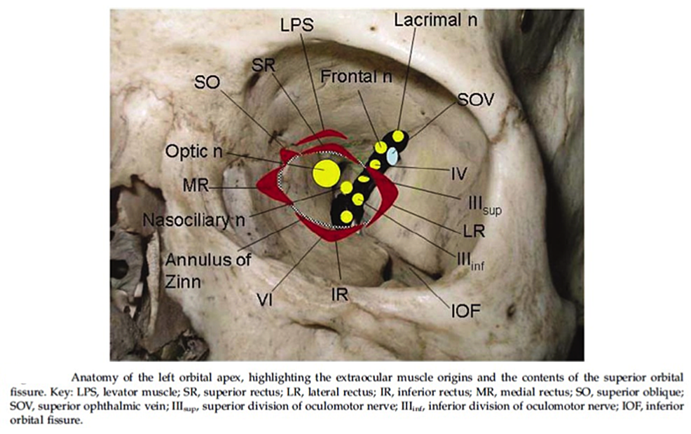 Cureus A Clinical Review Of Orbital Anatomy And Its Relevance To