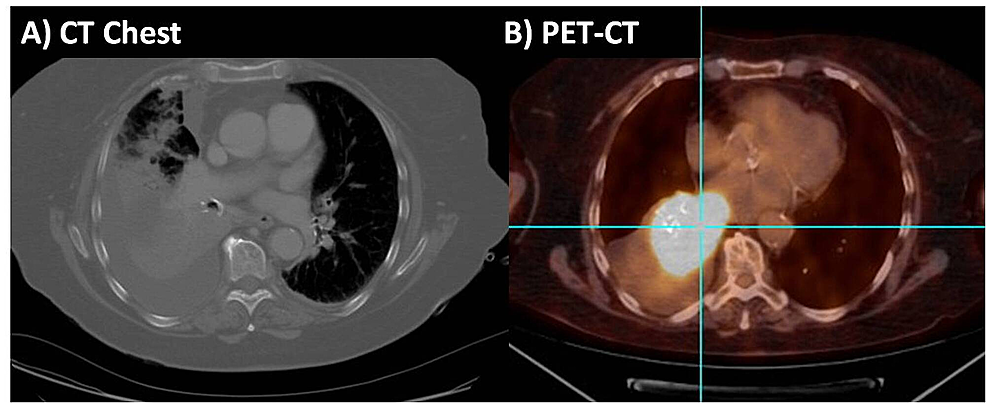 A)-Chest-computed-tomography-(CT)-scan-demonstrating-right-lower-lobe-consolidation-with-moderate-to-large-sized-right-pleural-effusion-and-B)-positron-emission-tomography-computed-tomography-(PET-CT)-scan-demonstrating-increased-fluorodeoxyglucose-(FDG)-uptake-in-the-heterogeneous-right-lower-lobe-pulmonary-mass-involving-bronchus-intermedius-and-right-lower-lobe-bronchus