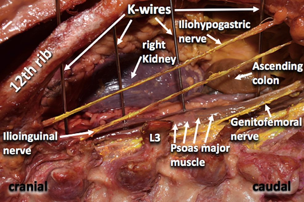 Posterior-view-of-the-retroperitoneal-dissection.