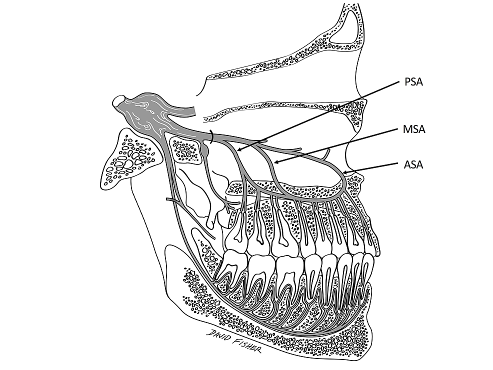 The-PSA,-MSA-and-ASA-as-depicted-by-Friedman-and-Hochman-(1998)-as-if-they-innervate-the-teeth-through-the-hard-palate.-The-ASA-is-drawn-as-if-it-is-the-terminal-branch-of-the-infraorbital-nerve.