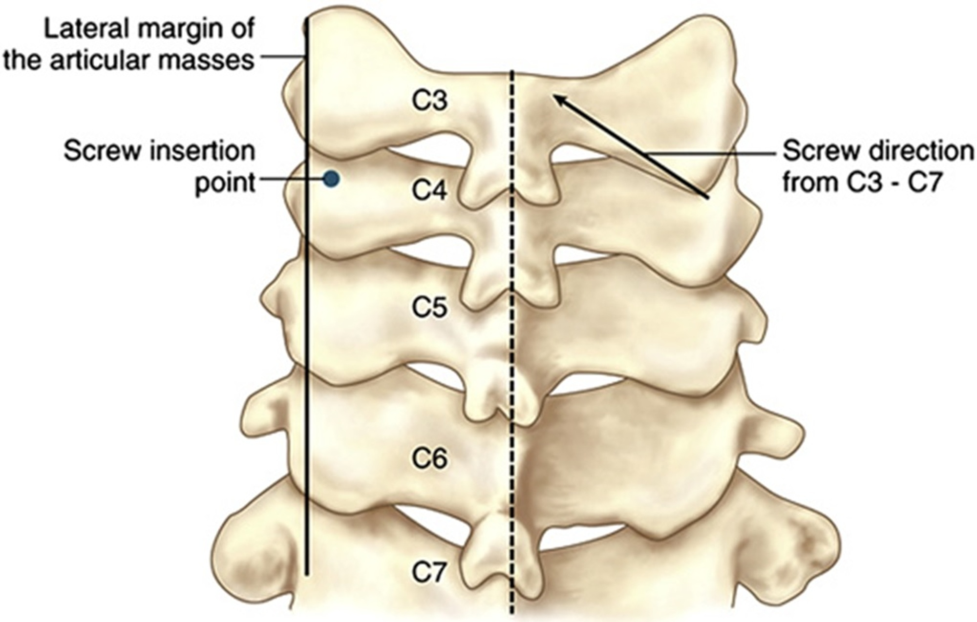 Cureus Posterior Fixation Techniques In The Subaxial Cervical Spine