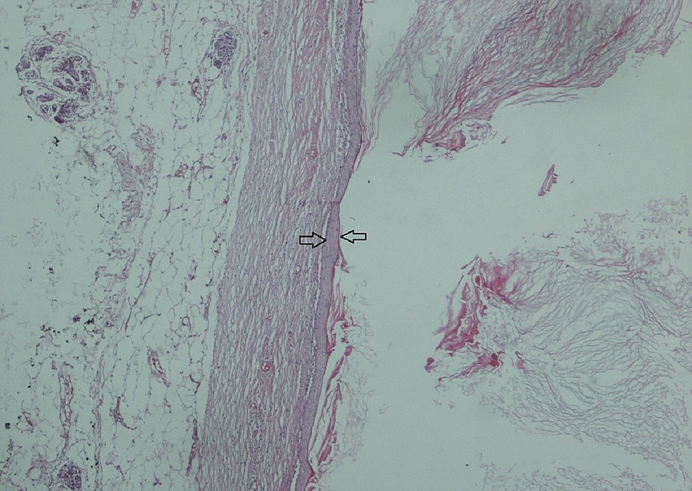 Squamous-epithelium-fitted-(arrow)-keratinized-material-on-the-lumen-facing-side-and-the-cystic-tissue-(H&E-X-40)-viewed-as-breast-tissue-on-the-other-side