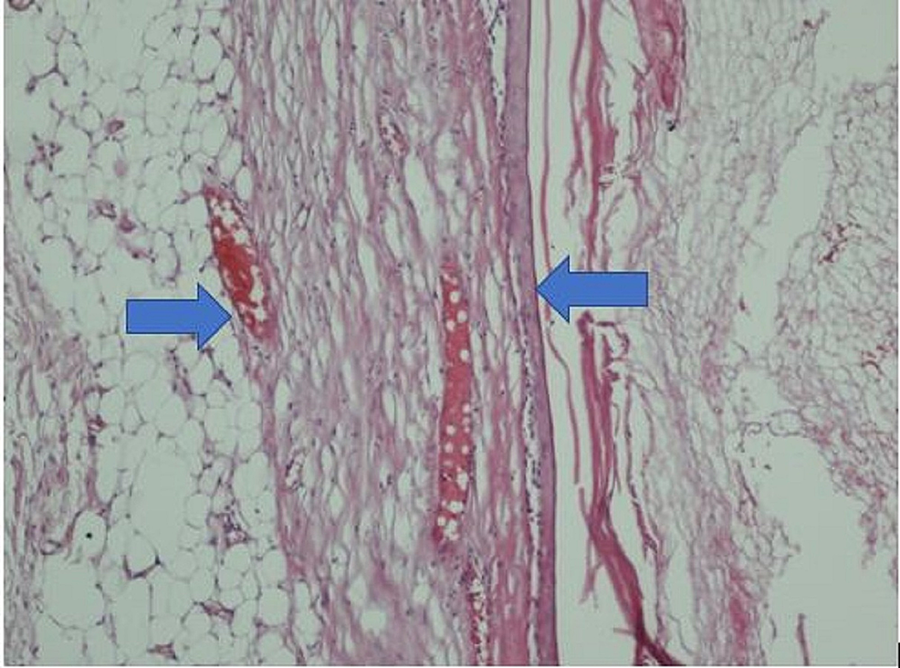 A-close-image-of-the-lamellar-keratin-comprising-cysts-fitted-epithelium-and-cyst-content-(H&E-X-200)