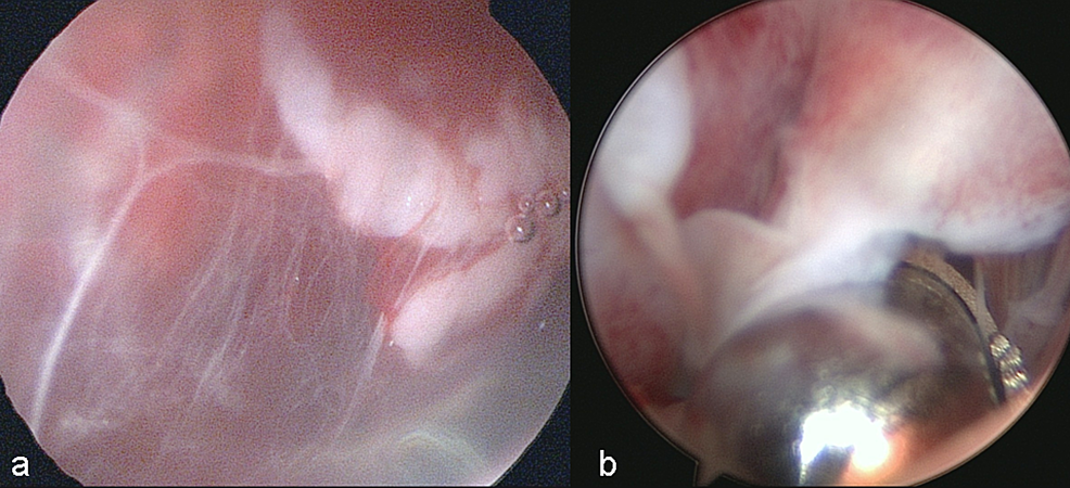 a)-Intraoperative-view-of-endoscopic-bursectomy-in-left-knee-with-prepatellar-bursitis.-Anteromedial-portal-was-opened-a-little-bit-laterally-to-avoid-any-damage-to-infrapatellar-nerve.-b)-Endoscopic-view-of-the-prepatellar-bursitis.