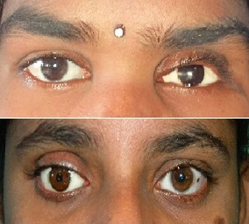 Final-ocular-prosthesis-for-Cases-1-and-2