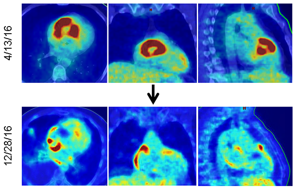 PET/CT-fusion-scan-showing-the-FDG-avid-mass-(red)-in-the-right-ventricle