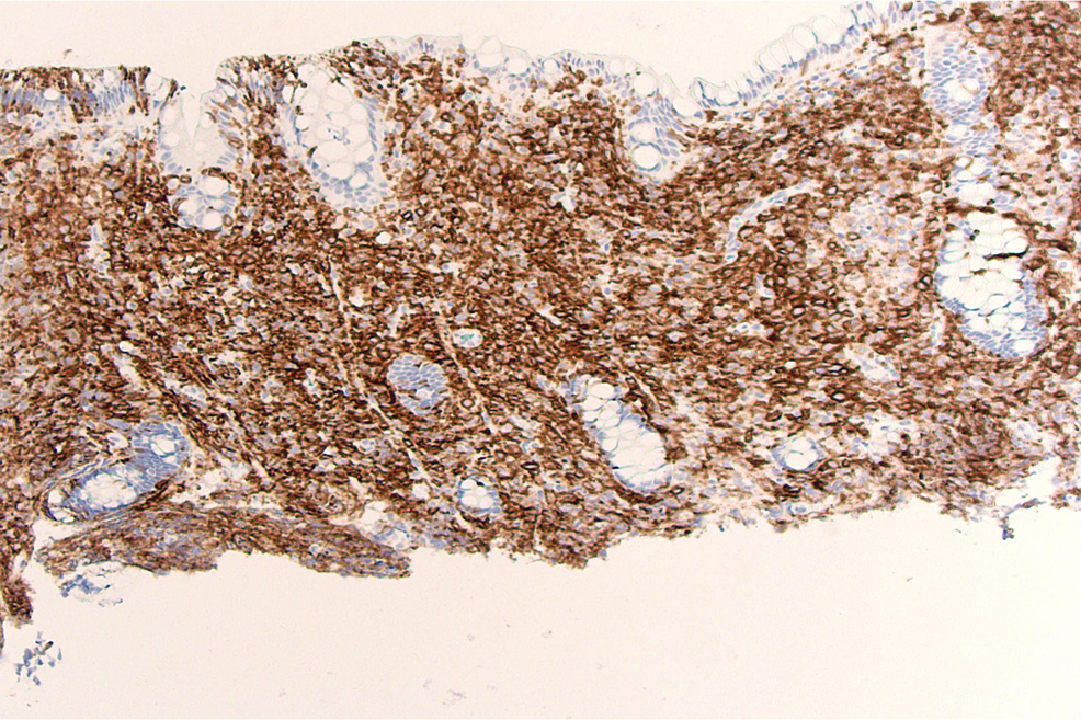CD-1a-immunostaining