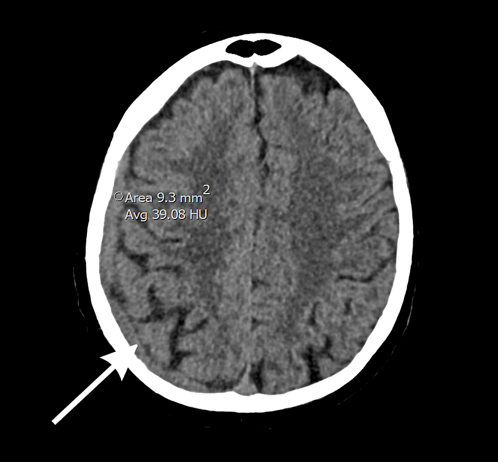 Computed-tomography-(CT)-of-the-head-shows-a-diffuse,-enhancing-dural-thickening-overlying-the-right-hemisphere-with-focal-areas-of-nodularity,-suggestive-of-metastatic-disease