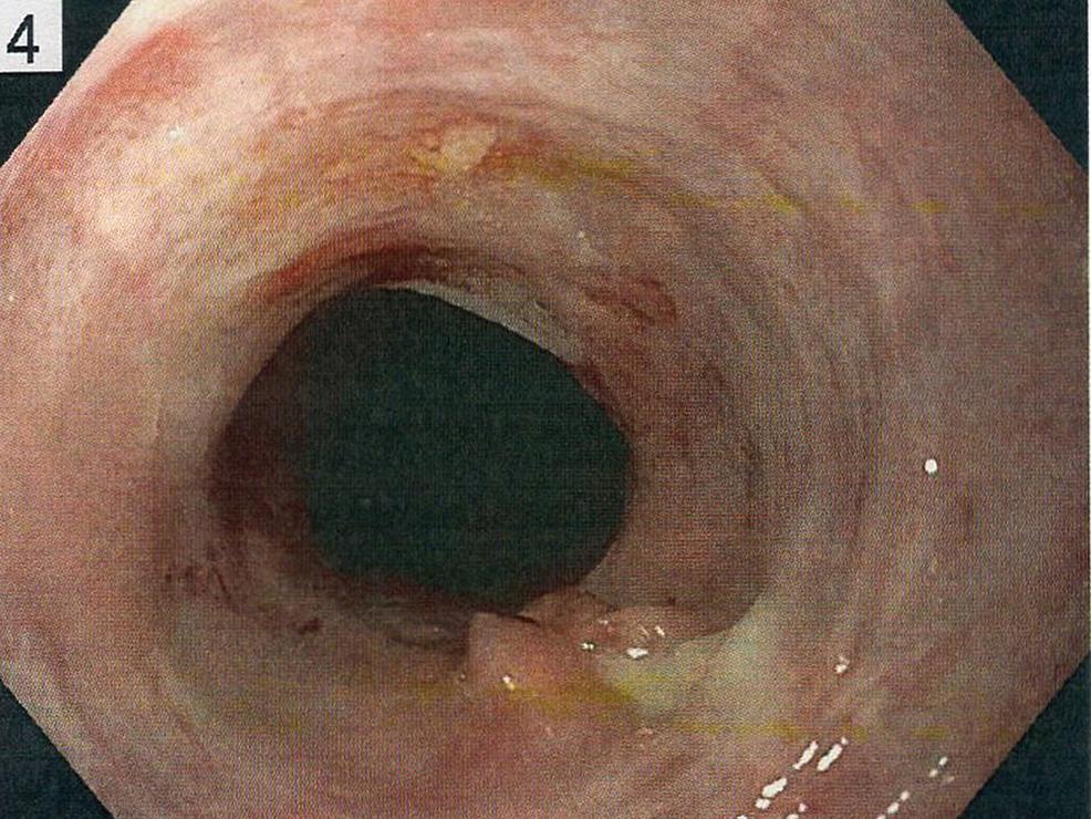 White-streaking-and-stricture-of-esophagus-via-esophagogastroduodenoscopy