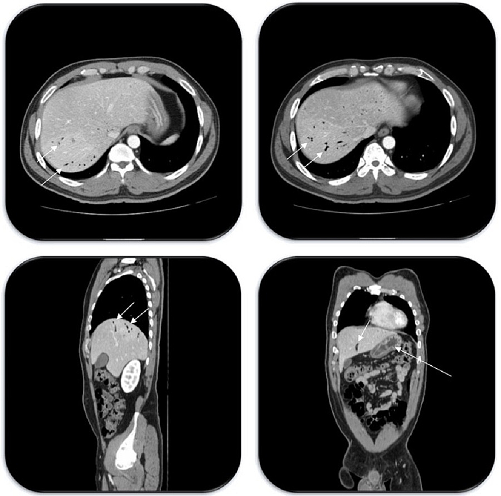 Axial-(upper-two-images),-sagittal-(left-lower-image),-and-coronal-(right-lower-image)-abdominal-CT-scan-images-showing-diffuse-portal-venous-gas-(short-arrows)-and-gastric-wall-thickening-(long-arrow)-up-to-1-cm