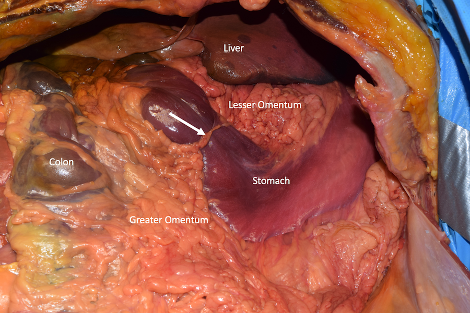 Cureus Constriction Of The Stomach By An Unusual Peritoneal Band