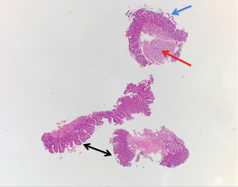 Biopsy-image-(H&E-stain)-of-the-duodenum.