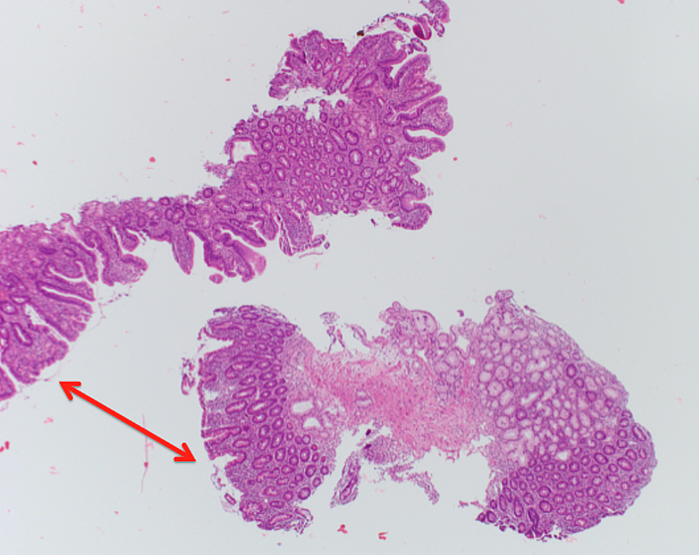 Higher-magnification-biopsy-image-(H&E-stain)-of-the-duodenum.