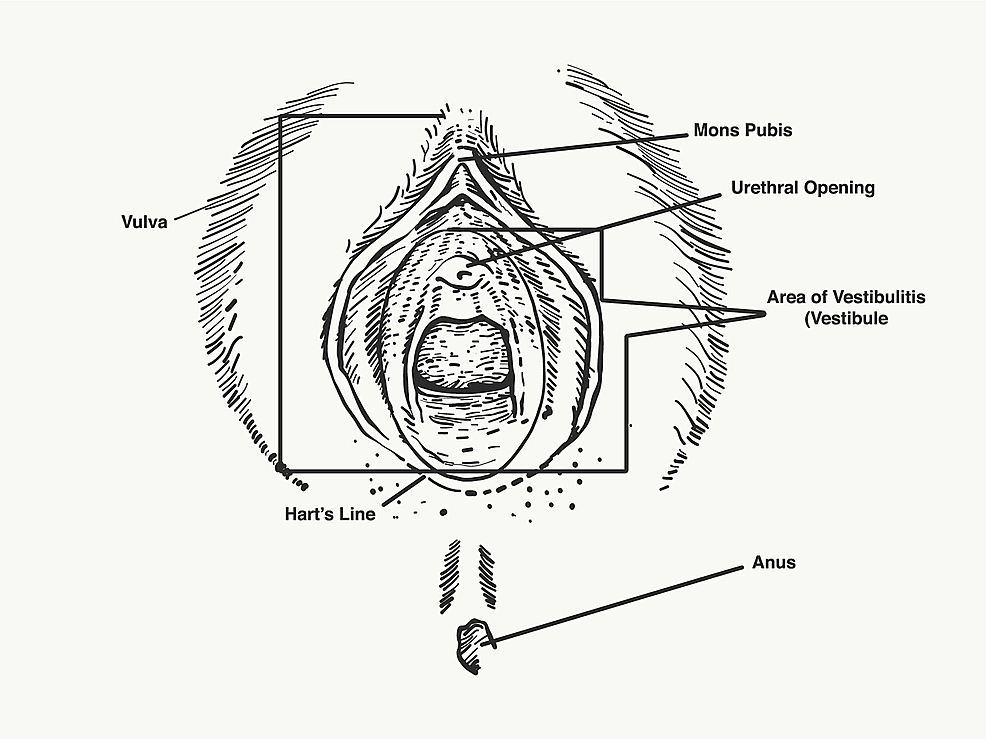 Have vulva idiopatic vestibulitis happens