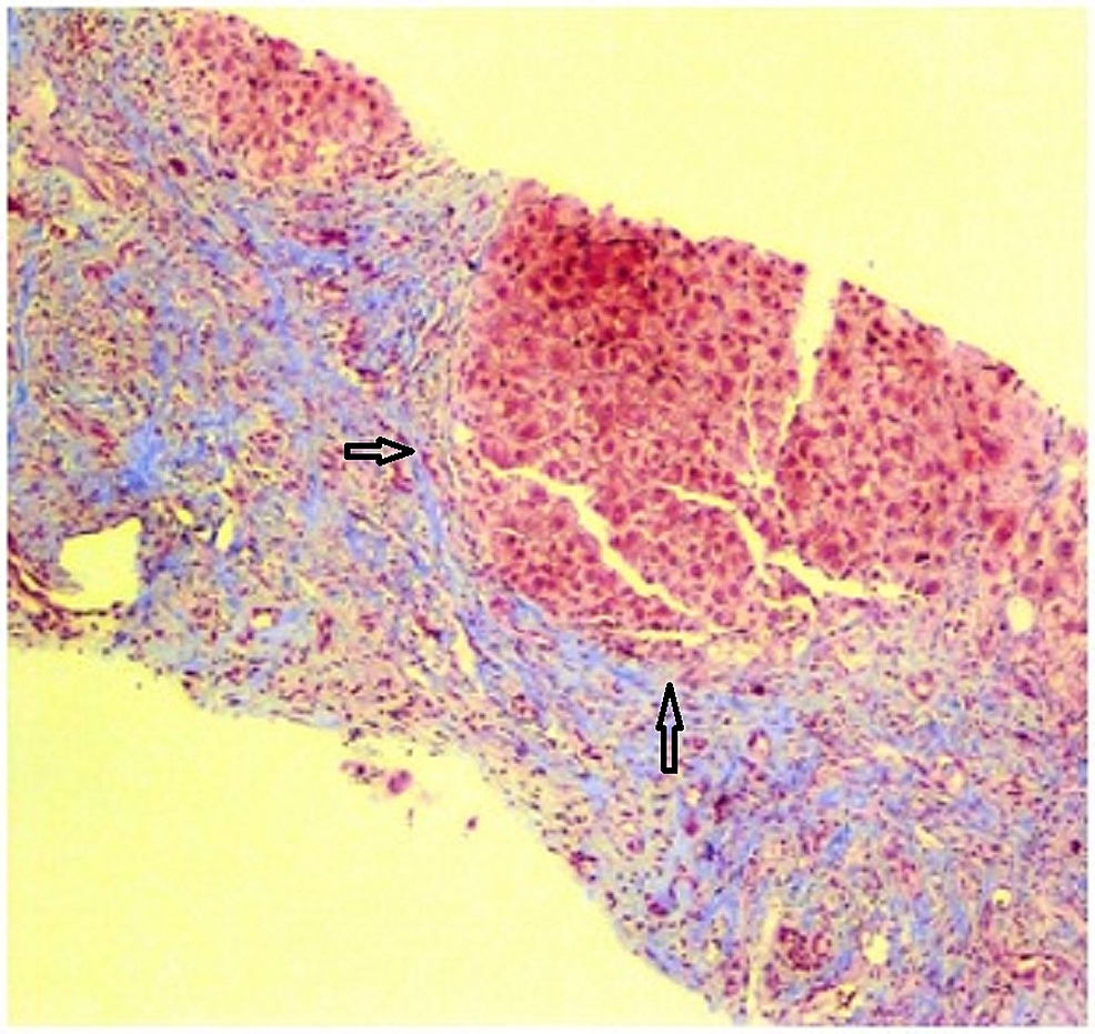 Trichrome-stain-highlighting-the-collagenous-fibers-surrounding-nodules-of-hepatocytes.