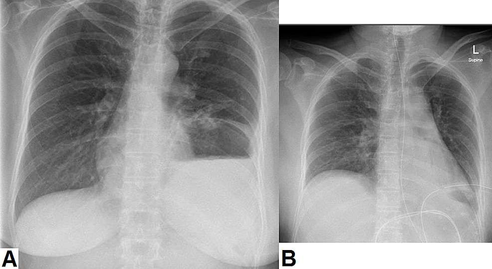 Plain-chest-radiographs-of-the-patient