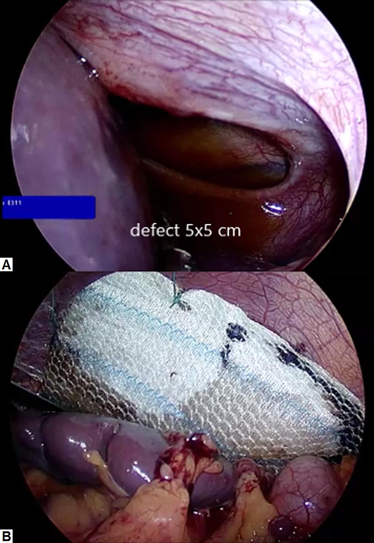 Laparoscopic-pictures-of-the-diaphragm