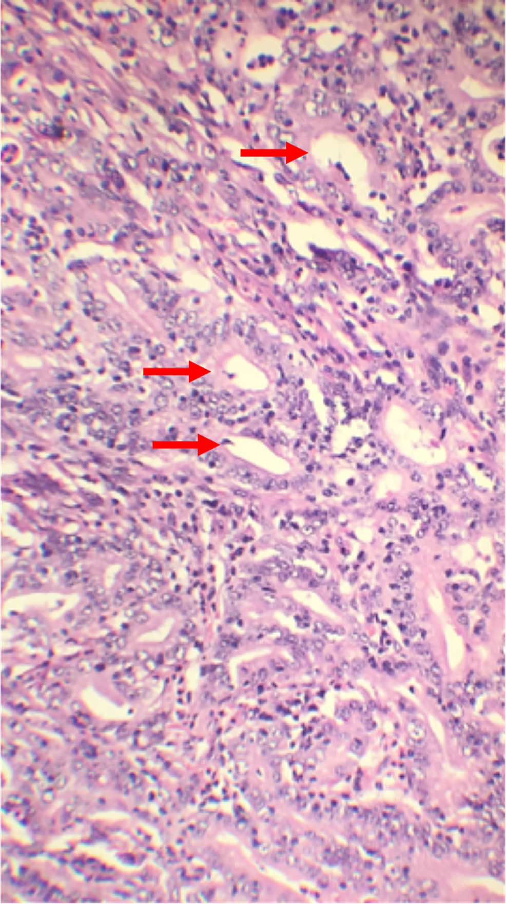 Histopathology-of-distal-stomach-showing-poorly-differentiated-adenocarcinoma-of-the-intestinal-type.