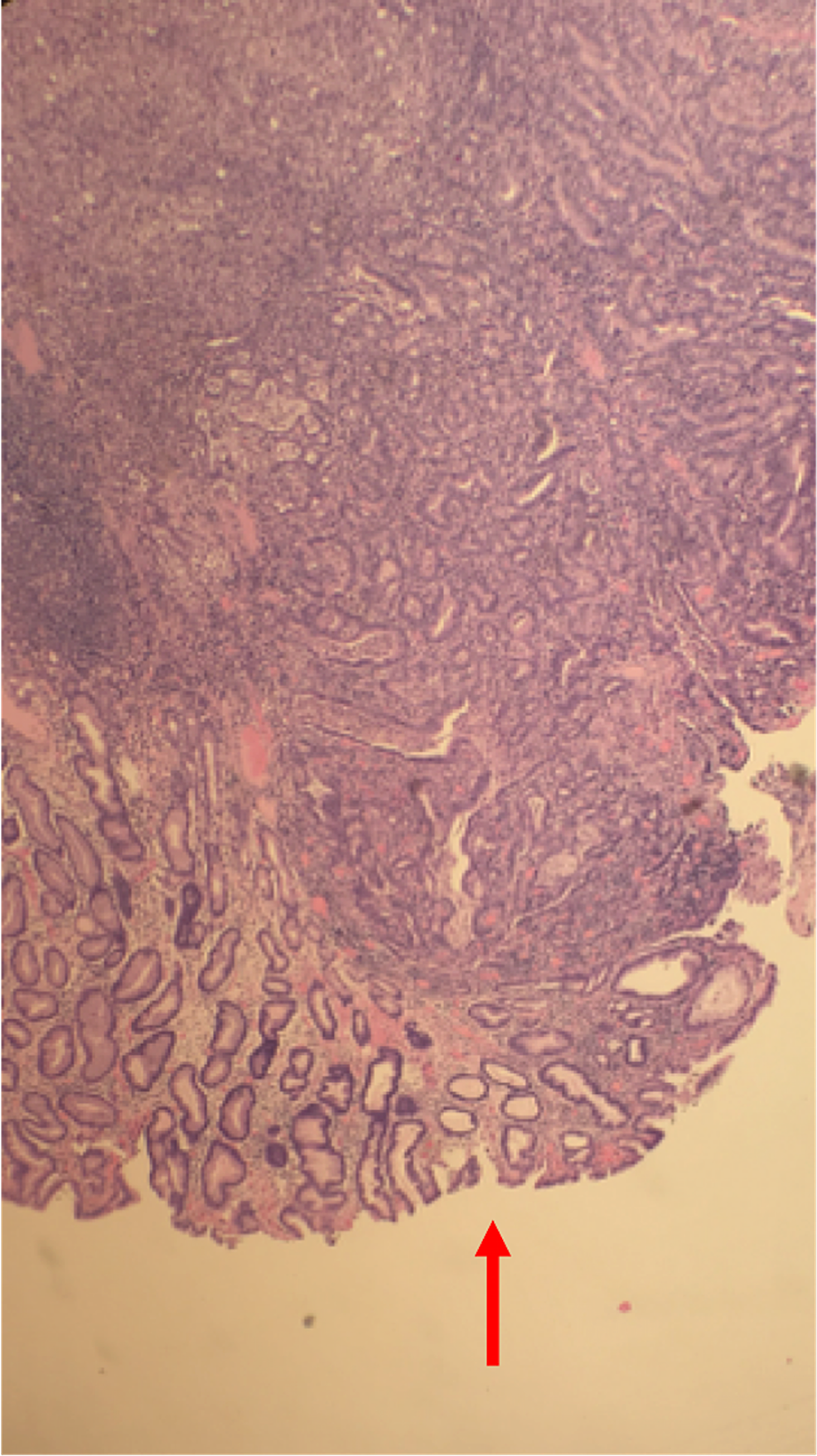 Histopathology-slide-of-colon-showing-cancer-cells-invading-muscularis-propria-and-extending-into-the-serosa.