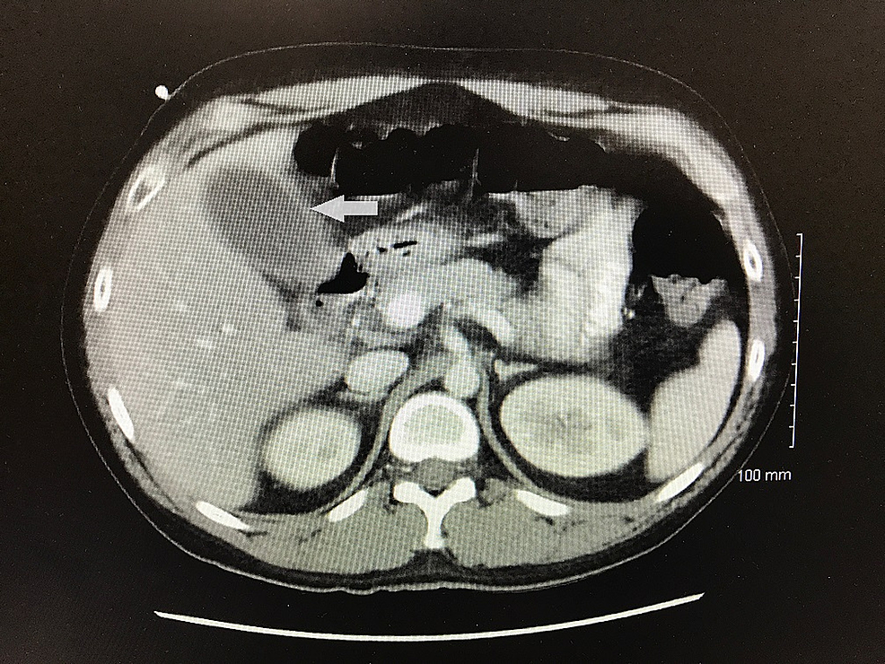 Computed-tomography-scan-of-abdomen