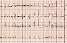 Article box 4fcc6cc00ad111e89c4989b0aafa2e84 figure 1 ekg
