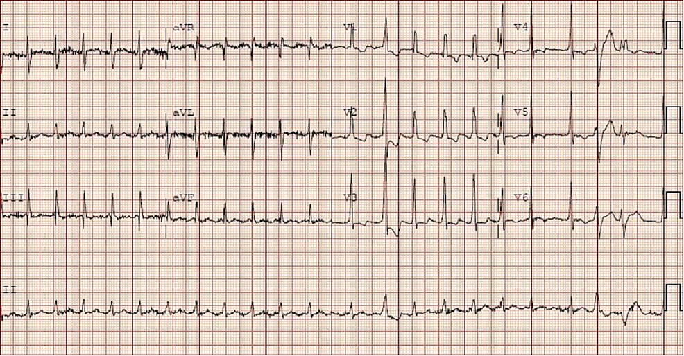 Electrocardiogram-showing-atrial-fibrillation-with-non-specific-ST-T-wave-changes.