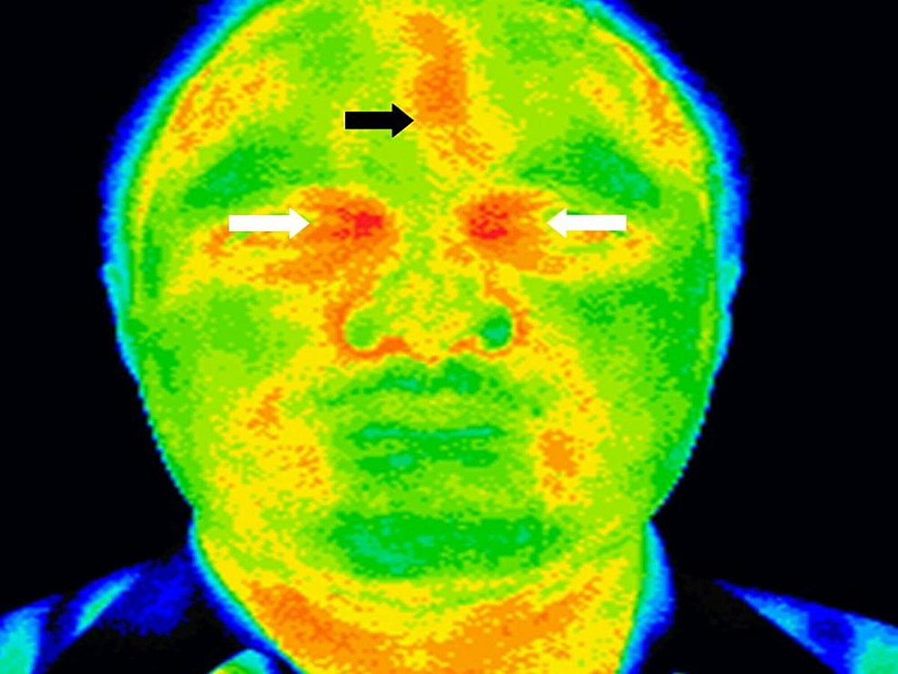 Thermography-of-the-head-and-neck-showing-regions-of-hyperthermia-(black-arrow)-in-the-left-frontal-region-and-bilateral-ethmoid-regions-(white-arrow)-suggestive-of-left-frontal-and-ethmoidal-sinusitis