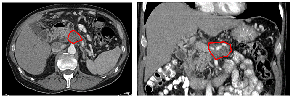 Diagnostic-computed-tomography-with-visible-pancreatic-body-lesion.