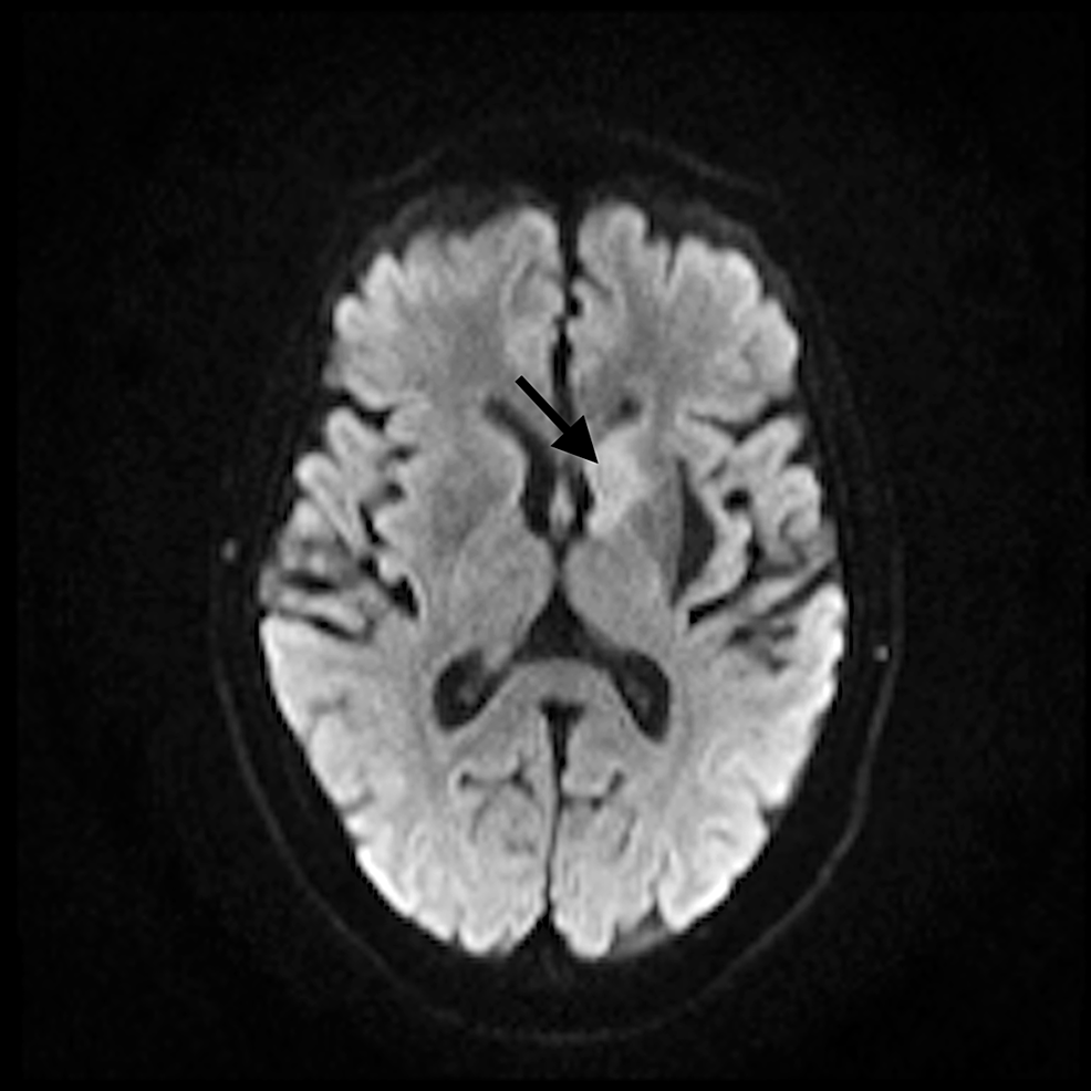 Magnetic-resonance-imaging-(MRI)