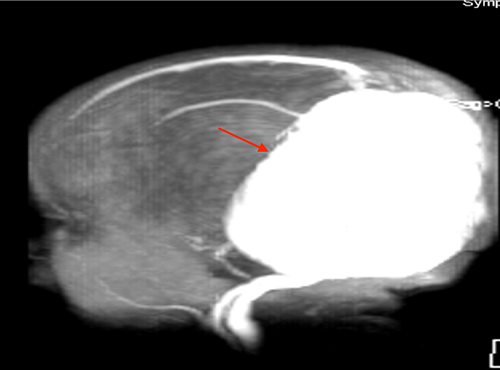 MRI-scout-image-noting-the-large-VGAM-(red-arrow)-seen-in-the-patient-shown-in-Figure-2