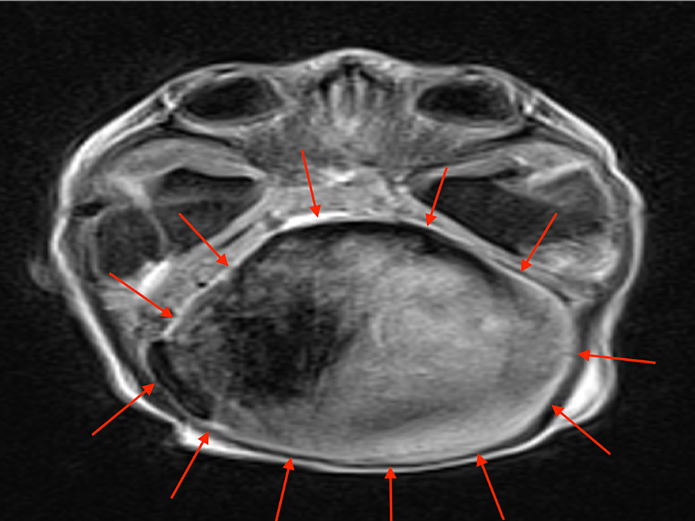 Axial-T1-weighted-MRI-of-the-patient-above-with-a-large-VGAM-(red-arrows)
