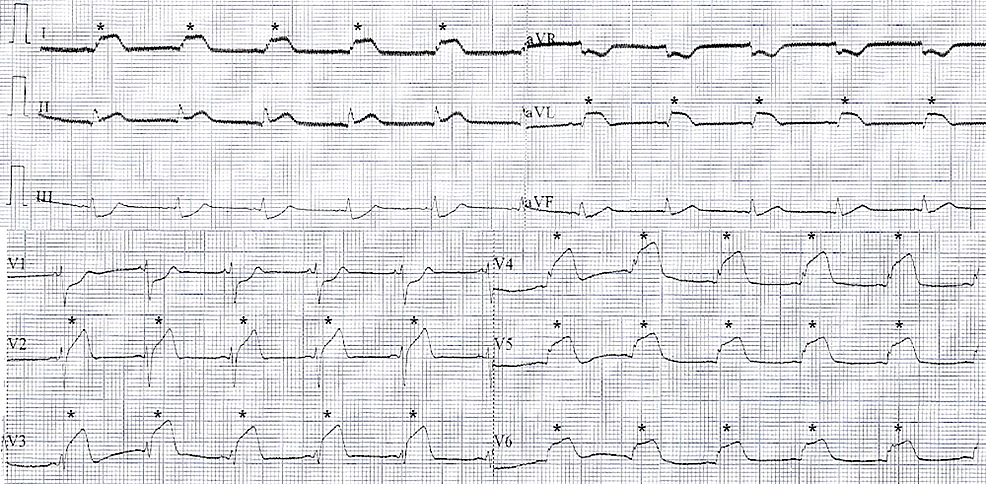 STEMI-at-electrocardiography