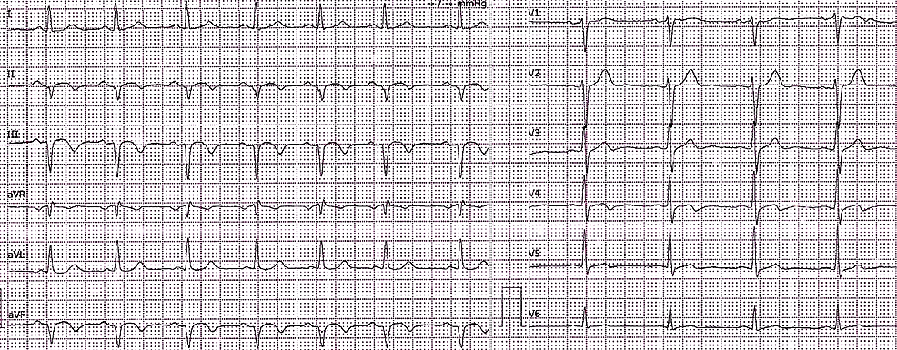 Electrocardiogram-(ECG)-at-PCI-capable-hospital-showed-pathological-Q-waves-in-inferior-leads-in-the-absence-of-ST-segment-elevation