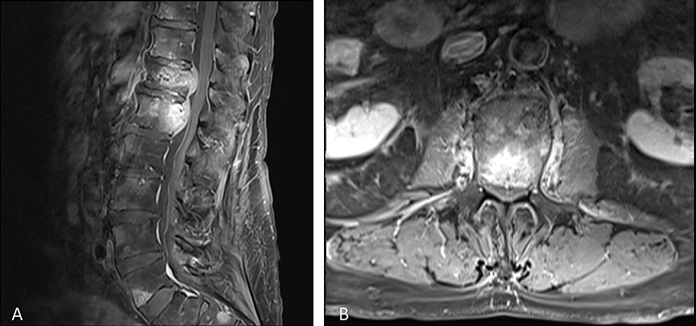 Pre-treatment-contrast-enhanced-T1-weighted-magnetic-resonance-imaging-of-the-sagittal-spine-(A)-and-axial-spine-at-L1-(B)-showing-vertebral-metastases-and-epidural-involvement