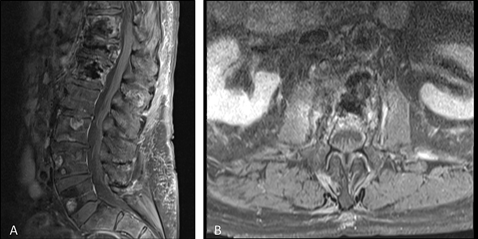 Post-treatment-contrast-enhanced-T1-weighted-magnetic-resonance-imaging-of-the-sagittal-spine-(A)-and-axial-spine-at-L1-(B)-showing-vertebral-augmentation-changes-and-resolution-of-epidural-disease-and-spinal-compression