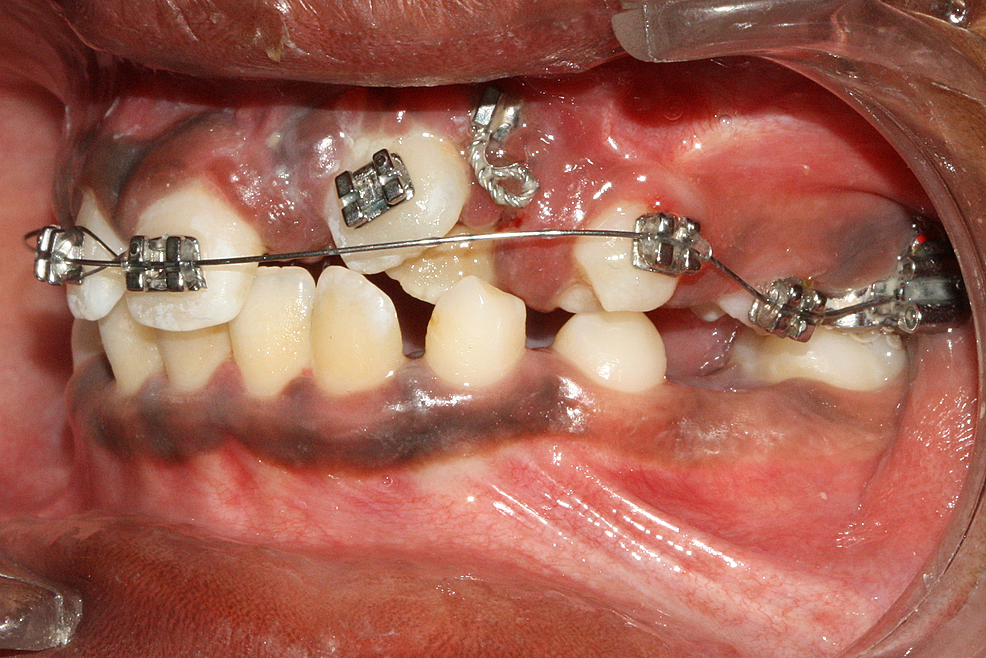 Initial-strap-up-after-eruption-of-central-and-lateral-incisors