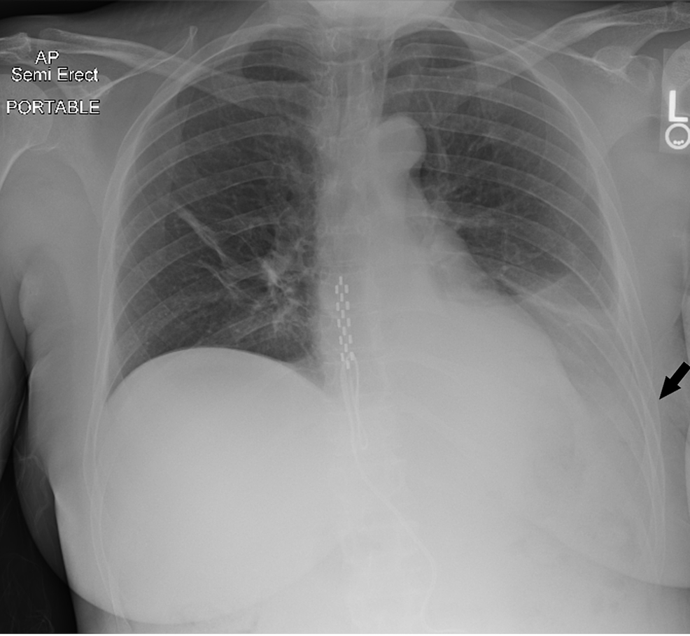Chest-X-ray-on-postoperative-day-3-showing-left-sided-pleural-effusion.